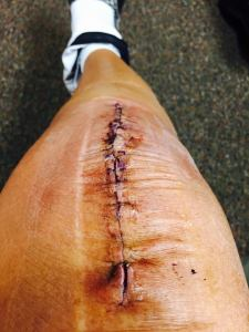 Mr. Right Knee, one week after surgery